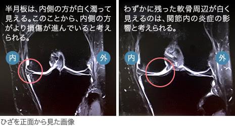 74歳・女性/変形性膝関節症(末期)