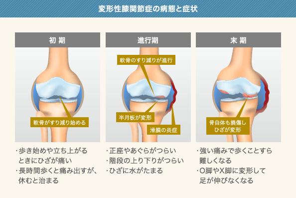 変形性膝関節症の病態と症状