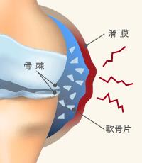 関節内炎症 イメージ