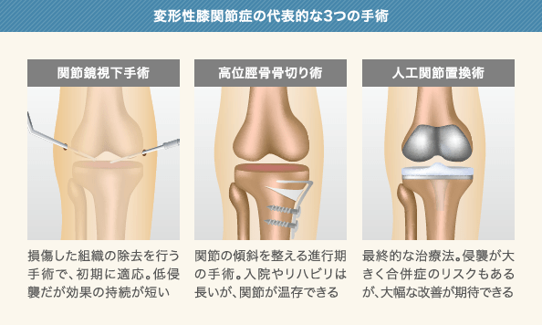 変形性膝関節症の代表的な3つの手術