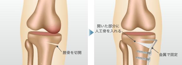 脛骨を切開 / 開いた部分に人工骨を入れる 金属で固定