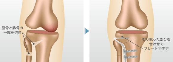 脛骨と腓骨の一部を切除 / 切り取った部分を合わせてプレートで固定