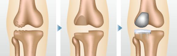 ひざ関節の内側だけ、もしくは外側だけなど、損傷が激しい部分だけを人工関節に置き換える方法