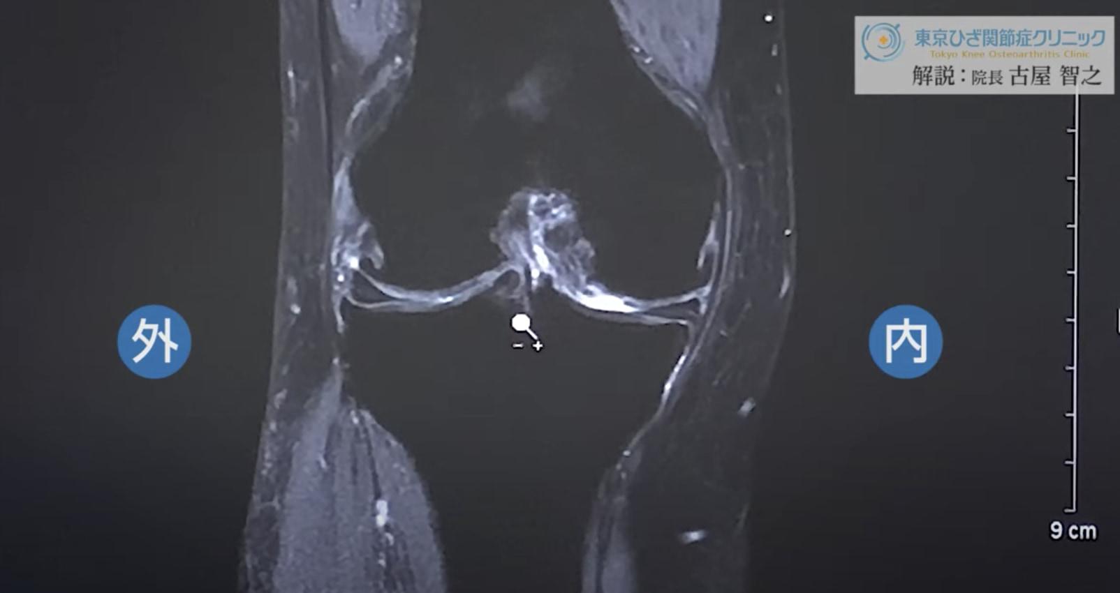 膝MRI画像(60代後半/末期の変形性膝関節症)